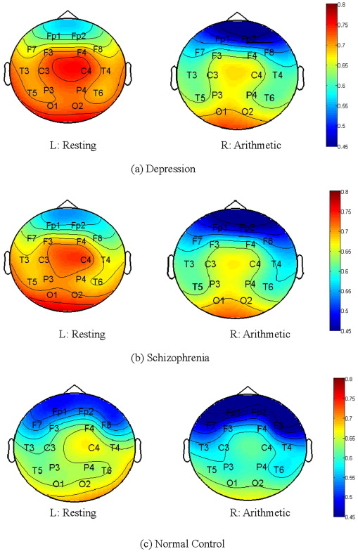 Abnormal EEG complexity in patients with schizophrenia and depression